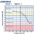 Diagnosticul corect și complet al scăderiilor de auz